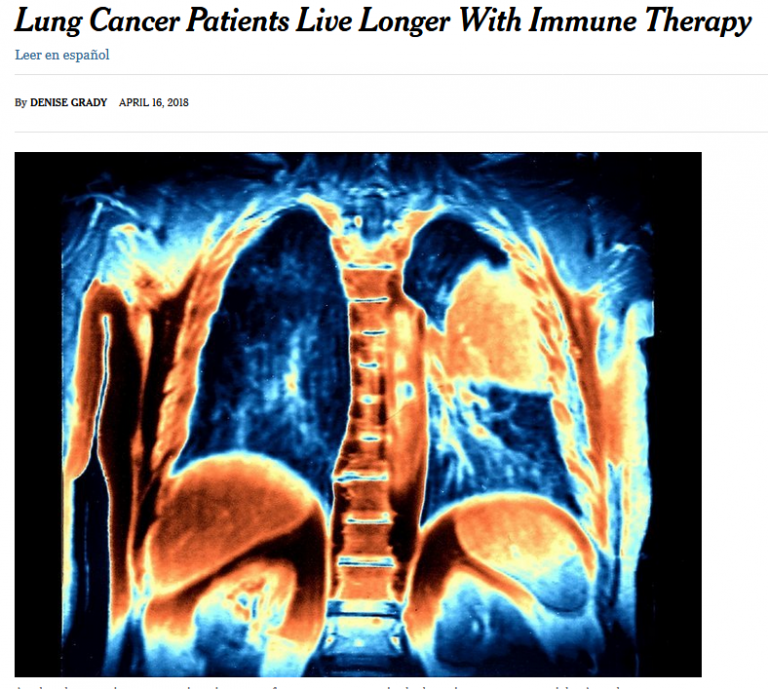 Lung cancer patients live longer on immune therapy